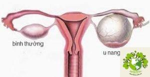 Đau bụng dưới bên trái ở nữ